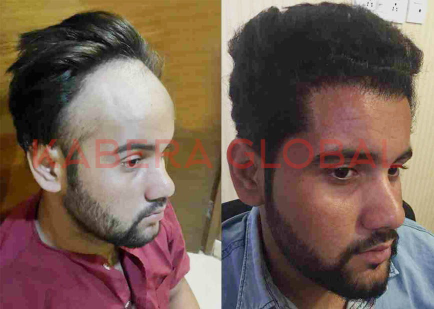 Before and After Hair Transplant Results